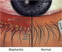 Blepharitis1