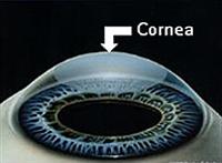 CornealTransplant1