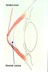 Keratoconus2