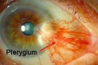 Pterygium1
