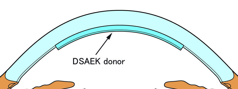 Replacement of the endothelial layer in DSAEK surgery